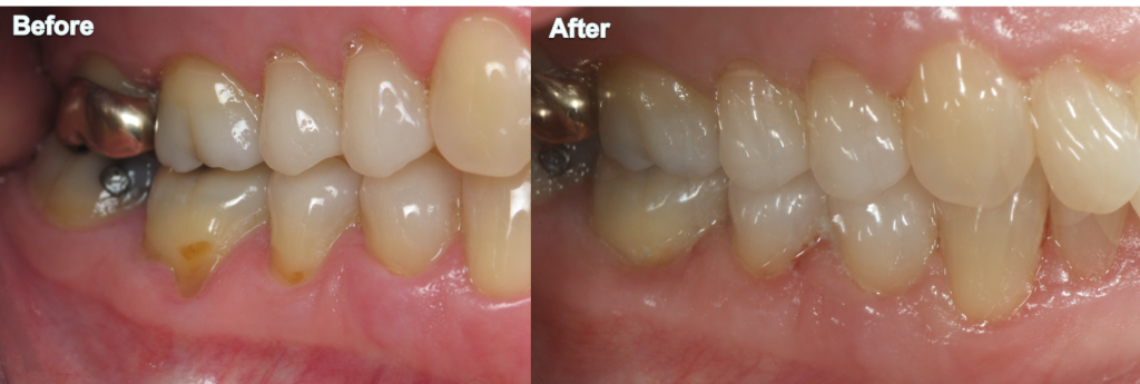 dental images before and after in indianapolis  in