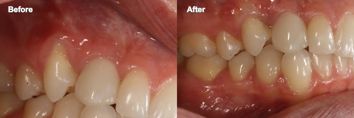 Gum Grafting 2