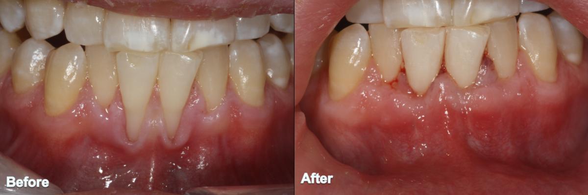 Gum Grafting 7